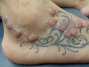 Tatuaggi, trucco permanente: quanto sono sicuri ...