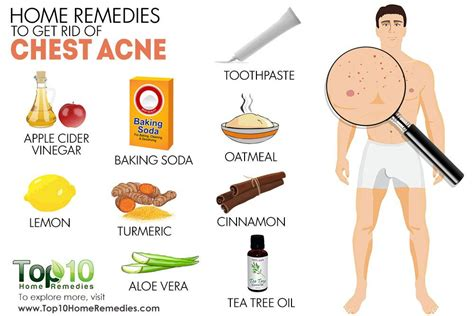 how to get rid of pimples on face