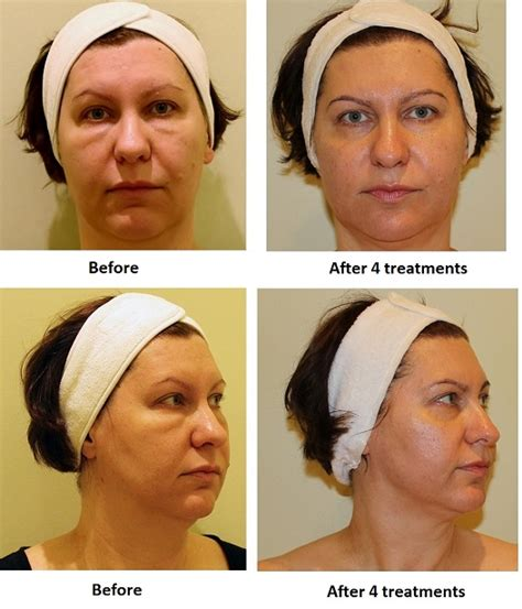 multipolar rf case studies oakville beauty institute