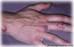 Health Blog » Bacterial skin infections – Causes, Types ...
