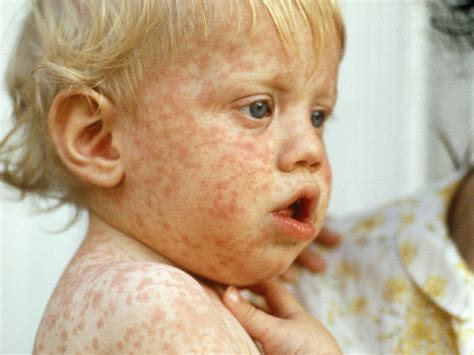 Childhood Rashes And Skin Conditions Babycenter Canada