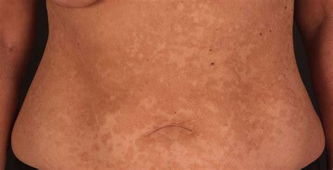 kleieflechte pityriasis versicolor ursachen symptome
