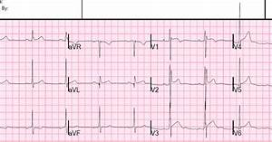 Dr. Smith's ECG Blog: Is this Type 2 Brugada syndrome/ECG ...
