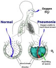 File:New Pneumonia cartoon.png - Wikimedia Commons Pneumonia