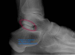 Dr  K  Lam Straight Talk  Pain In The Ankle    Subtalar