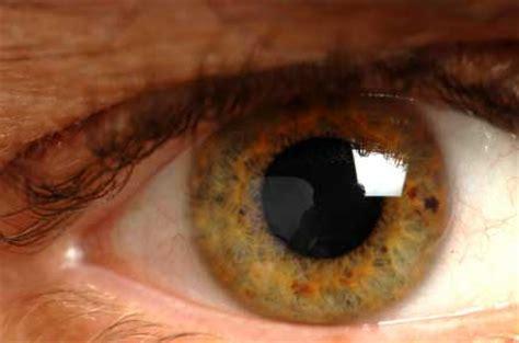 zoloft side effects  eyes