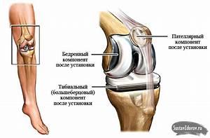 После замены тазобедренного сустава болит нога