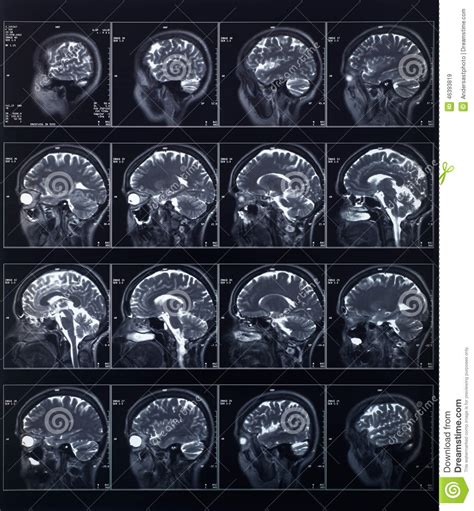 ray head brain exam medical radiography radiation