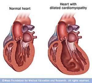 Cardiomyopathy, dilated; Cardiomyopathy, Congestive; Congestive ...  Dilated cardiomyopathy Cardiomyopathy
