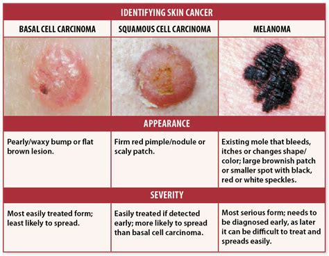 skin cancer signs  checks    avoid deadly