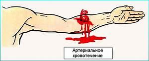 Лечение бородавок на ногах касторовым маслом
