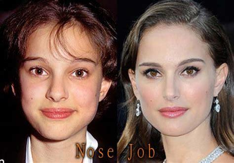 Natalie Portman Plastic Surgery Top Celebrity