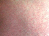 Zika Virus Rash - Pictures, Symptoms, Causes, Treatment ...