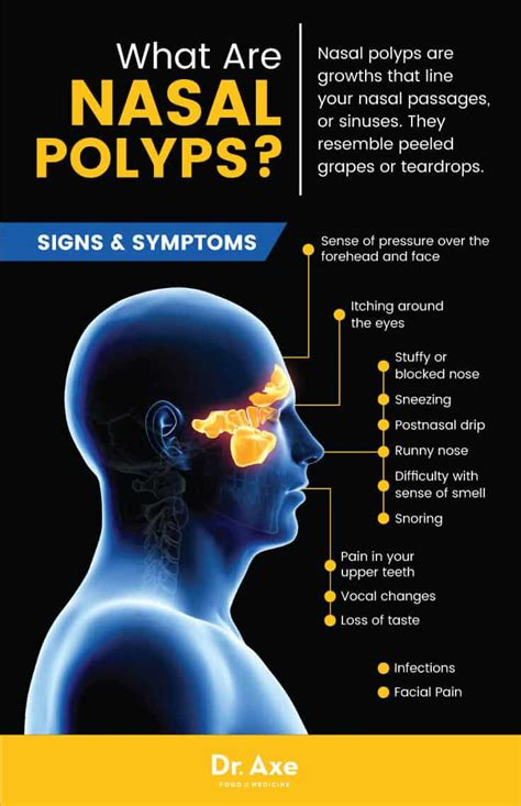 polyps nasal natural polyp signs lifestyle treatments remedies nose treatment changes inside conventional sinus common polyposis draxe food medicine curiositiesandnews