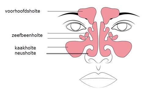 Sinusitis koorts