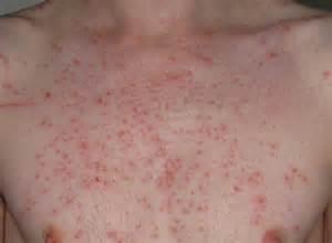 CONSULTORIO EN CASA: URTICARIA Y ANGIOEDEMA  Hives Angioedema