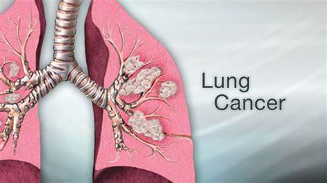 lung cancer cancer  affect    part