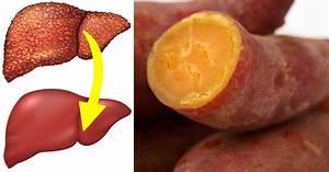 10 Foods  U0026 Supplements That Reverse Liver Disease