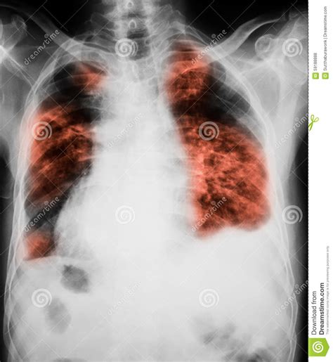 infection ray chest lung lungs showing immagine torace infezione esame radiografico mostra dell che poitrine polmoni montrant poumons radiographie polmone