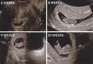 First Ultrasound When Pregnant