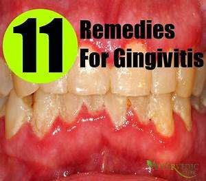 Gingivitis Cure Related Keywords - Gingivitis Cure Long ...