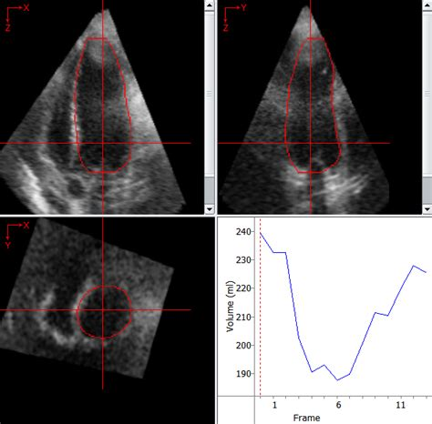 cardiovascular image analysis  iowa institute  biomedical imaging