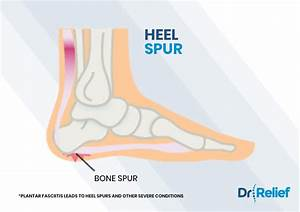 The Ultimate Guide To Understanding Foot Pain