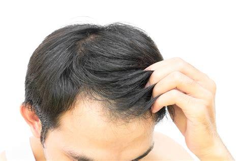 Prp Treatment For Hair Loss  Snellville, Loganville