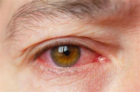 rote augen ursachen symptome behandlung aumedo