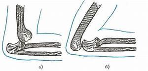 Мазь для снятия воспаления суставов стопы