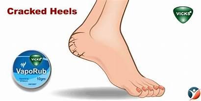 Vicks Vaporub Cracked Feet Heels Bet Amazing
