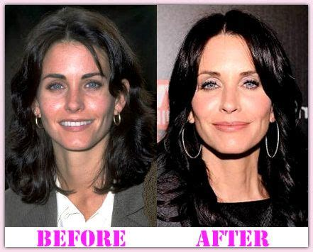 Pin on Famous Plastic Surgery Before and After
