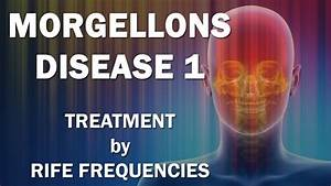 MORGELLONS DISEASE AN INSTANT CURE FOR MORGELLONS - satukis info