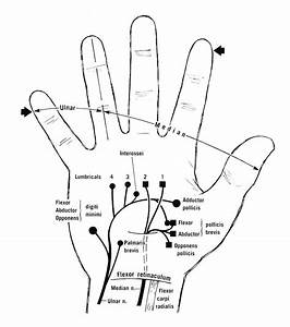 Diagram To Show The Motor Innervation Of The Hand