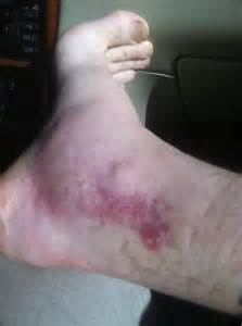 Copperhead Bite On Foot