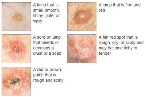 Skin Cancer Symptoms. Ncsu Student Health Insurance. Wellness In The Workplace Alabama Home Loans. Auto Insurance Amarillo Visible Veins On Legs. Best Movie Stream Sites Lsu School Of Nursing. Medical Graduate Programs Domain Admin Rights. Renters Insurance Greensboro Nc. Opnet Technologies Inc Meaningful Use And Ehr. Ft Worth Water Gardens The Best Forex Brokers