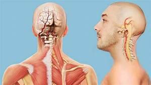 Синдром позвоночной артерии и гипертония лечение