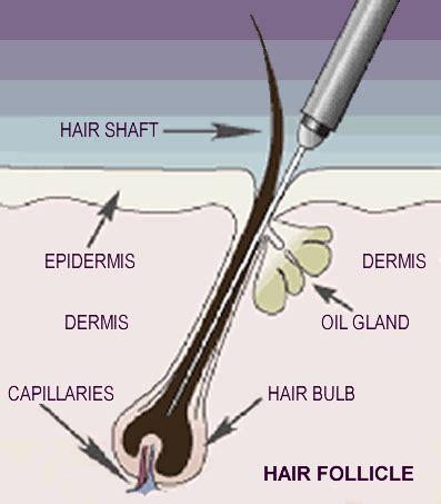 electrolysis permanent hair removal houston