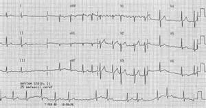 Rapid or irregular heartbeats, including atrial fibrillation