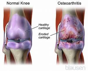 Osteoarthritis  Oa