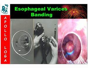 Upper GI Endoscopy - A pictorial overview  Ulcer Bleeding esophageal varices
