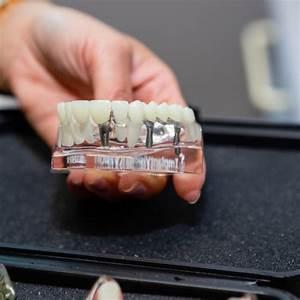 Dental Implants  U2013 Gentle Touch Dentistry