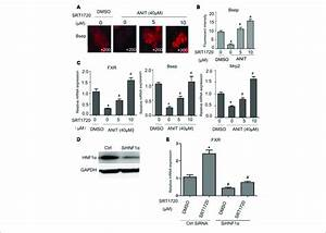 Effects Of Srt1720 On Fxr  Bsep  And Mrp2 Expressions In