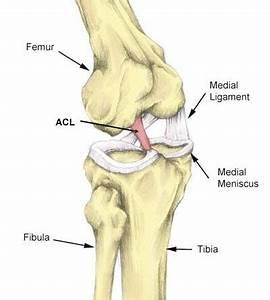 Diagram Of Torn Acl : acl tear anterior cruciate ligament sprain diagnosis ~ A.2002-acura-tl-radio.info Haus und Dekorationen