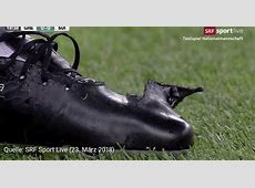 Granit Xhaka's Under Armour Magneticos Rip in Match