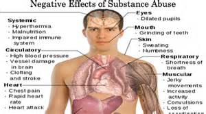 Welcome to Right Diet and Lifestyle Total Wellness Blog Stroke related to cocaine use