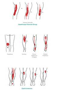 Lower Leg Muscle Pain Trigger Points