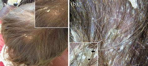 physical examination shows thick whitish asbestos