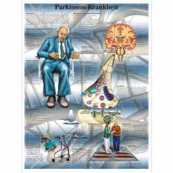 Parkinson's Disease Chart