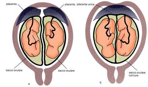 Gemelli Monozigoti Diversi - gemelli diversi o uguali la differenza tra i monozigoti e